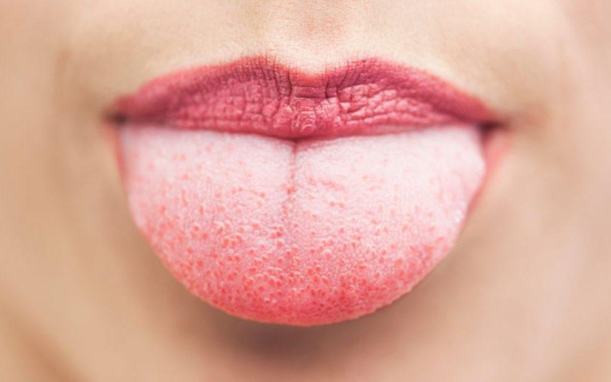 5 vragen over… speeksel en droge mond